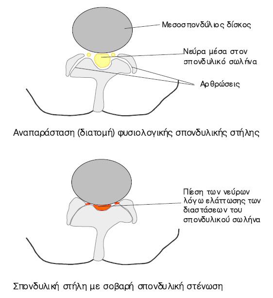 spondyliki stenosi1