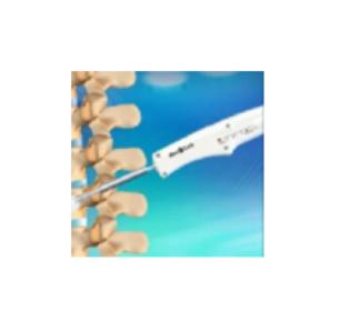 κυφοπλαστική η μέθοδος αντιμετώπισης οστεοπορωτικών καταγμάτων στη σπονδυλική στήλη