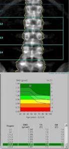 φωτογραφία dexa scan για μέτρηση οστικής πυκνότητας