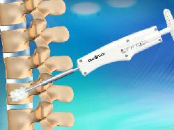 κυφοπλαστική: η μέθοδος αντιμετώπισης καταγμάτων σπονδυλικής στήλης